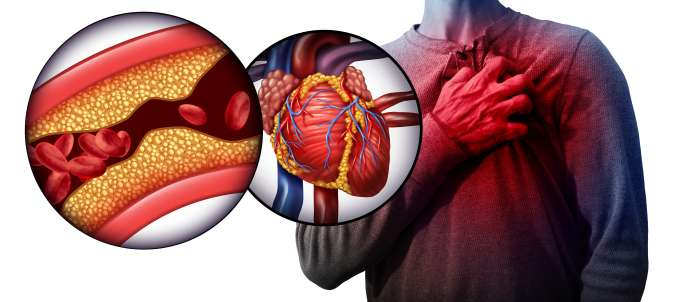 heart-attack-symptoms